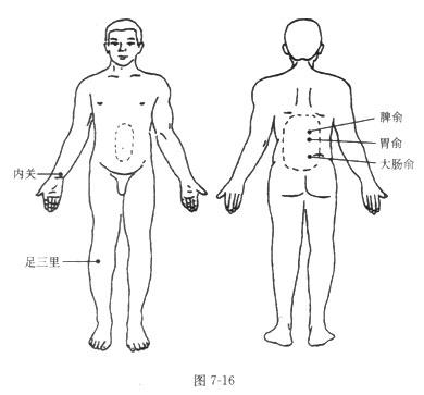 砭石治疗慢性胃炎的方法