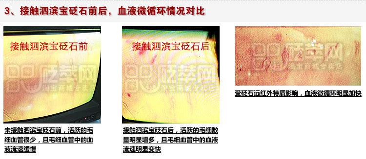 砭石学堂:泗滨砭石对人体甲襞微循环血流速度影响的定量检测图12