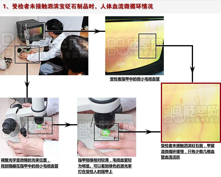 砭石学堂:泗滨砭石对人体甲襞微循环血流速度影响的定量检测图4