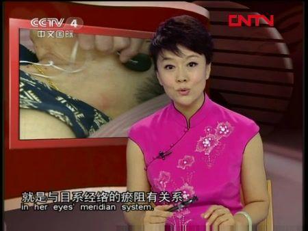 从而也说明了张鸿懿眼睛的问题,正是胆经与目系经络的瘀阻有关系
